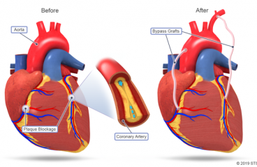 Coronary Artery Bypass: Complete Procedure Details about the Surgery