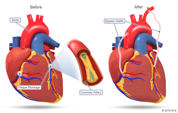 coronary artery bypass graft procedure steps
